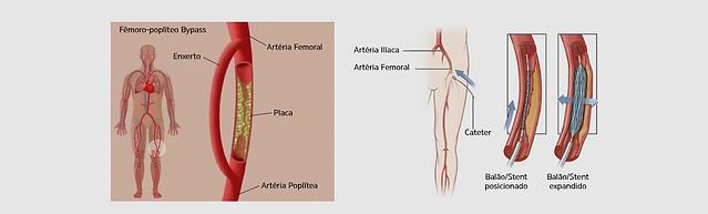 angioplastia.png