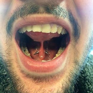 Tongue Web - £20