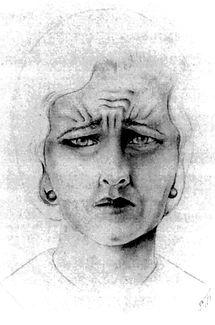 Botox used treat depression - Veraguth's Fold
