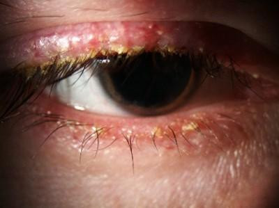 Chronic Blepharitis signs and symptoms