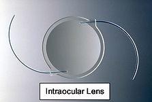 Cataract Test