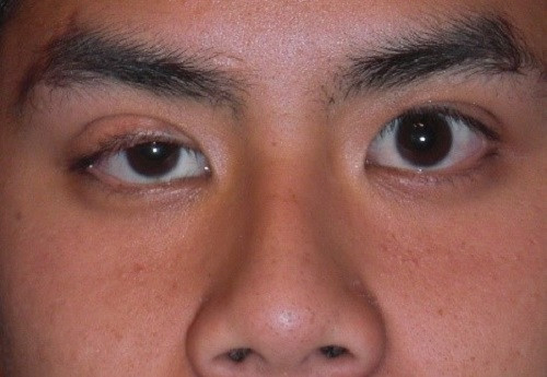 eyelids different lengths