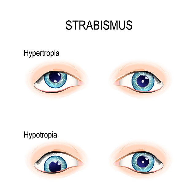 strabismus eyes