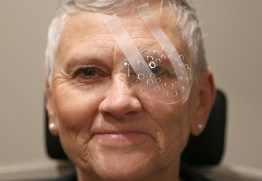 Cataract surgery guide: All your questions answered