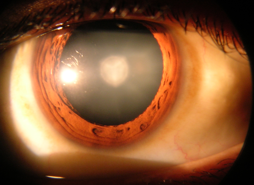 Cataract In Eye