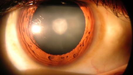 Cataracts Explained!