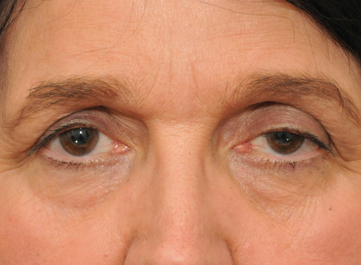 Causes of droopy eyes & eyelids