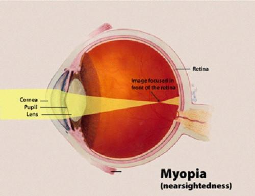 blurred vision (myopia)