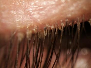 Blepharitis signs and symptoms