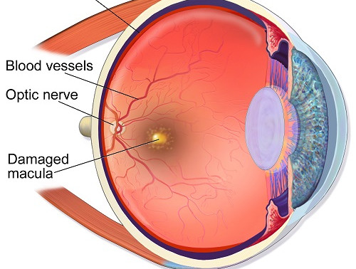 Why has my central vision got worse?