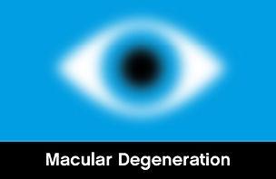 Macular-Degeneration.jpg