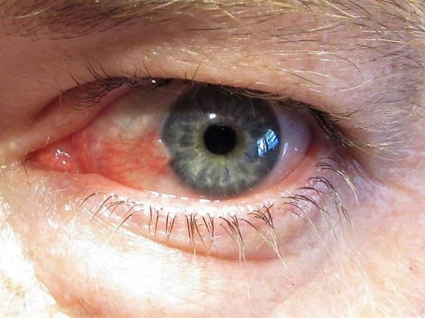 white spot on eye