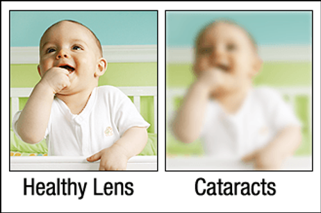 Vision affected by cataracts