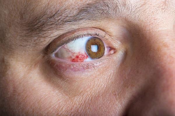 red spot on eye