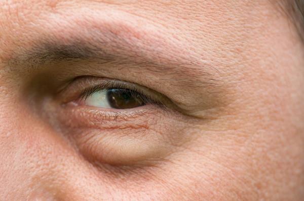 swelled up eye