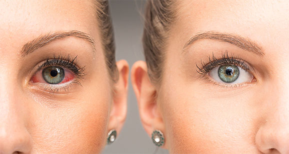 Woman suffering from dry eyes before and after