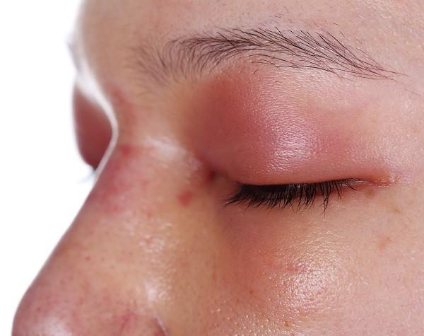 swelled eye