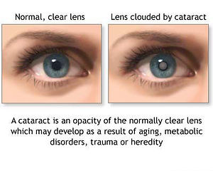 What are Cataracts?