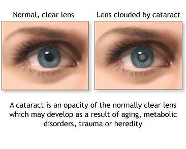Cataracts example