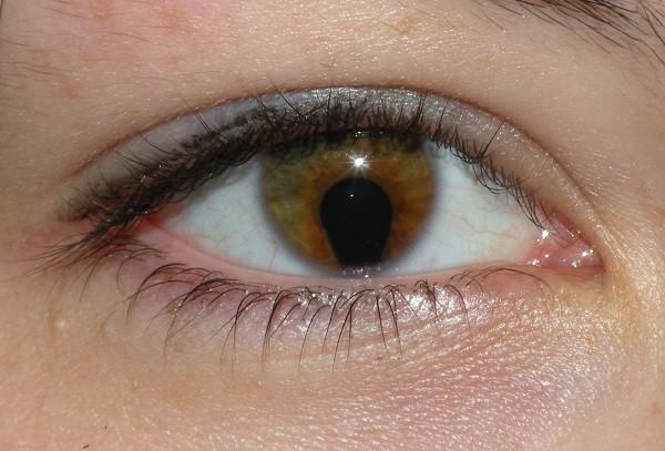 iris defect