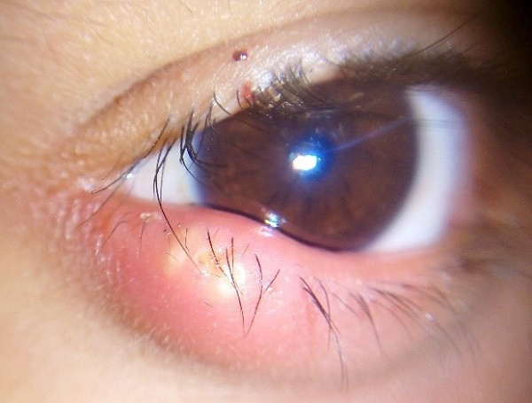 bump on eyelid