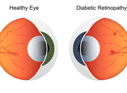 Can opticians (optometrists) detect diabetes?