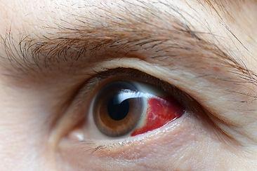 Emergecy eye care