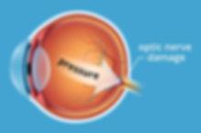 glaucoma-pressure-330x220_2x.jpg