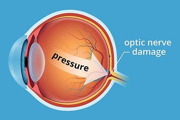 Glaucoma pressure eye diagram