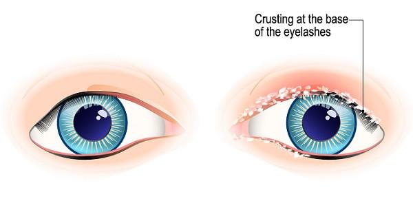 crust on eyelashes