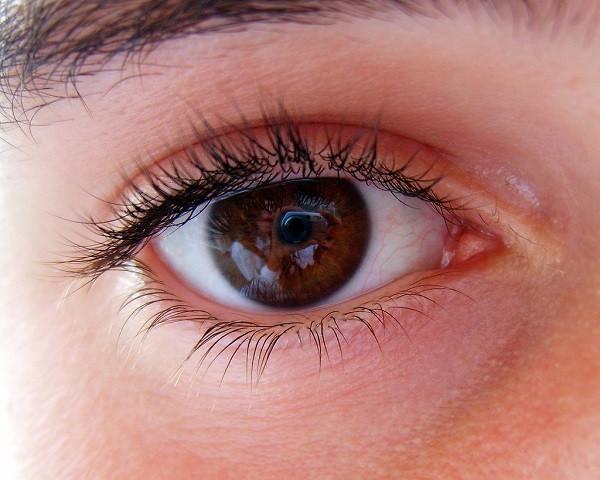 Myokymia (twitching eye)