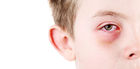 Accidents & Emergency Eye Treatment