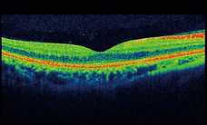 Retinal Image Analysis