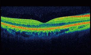 OCT Eye Test