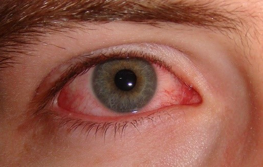 My eyes are red but is it conjunctivitis?