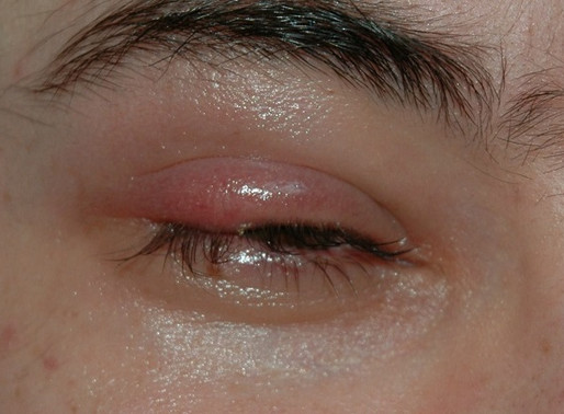 4 top causes of a swollen eyelid