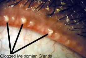 Posterior Blepharitis