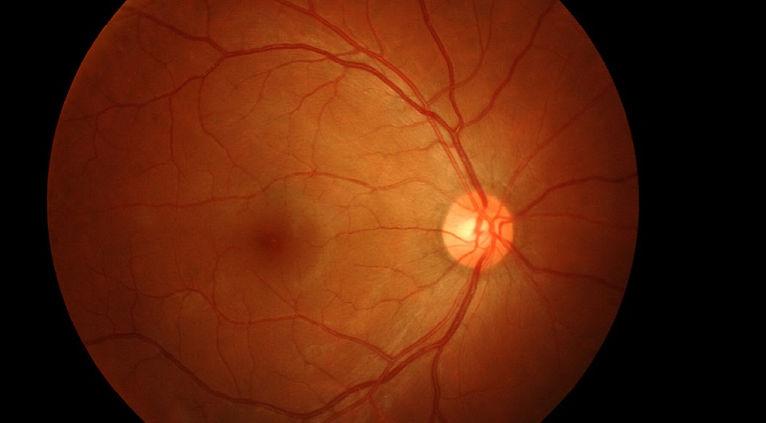 OCT Scan Image of eye