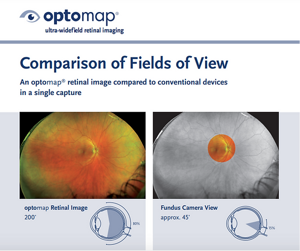 Optomap field of view comparison