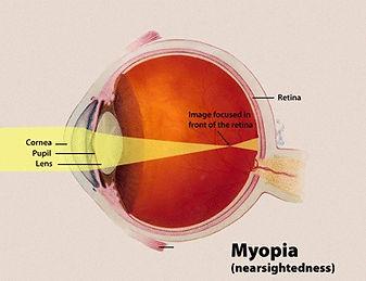 Myopia Definition