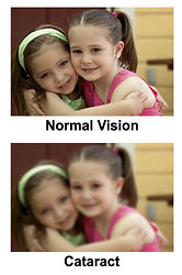 Effect of cataract on vision