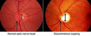 glaucoma explained