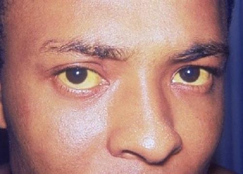 Jaundice: The white part of my eyes are yellow