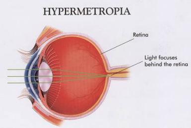 Hypermetropia Definition