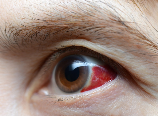 My eye is red: What causes bloodshot eyes?