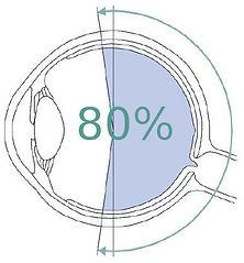 Optomap Retinal Exam