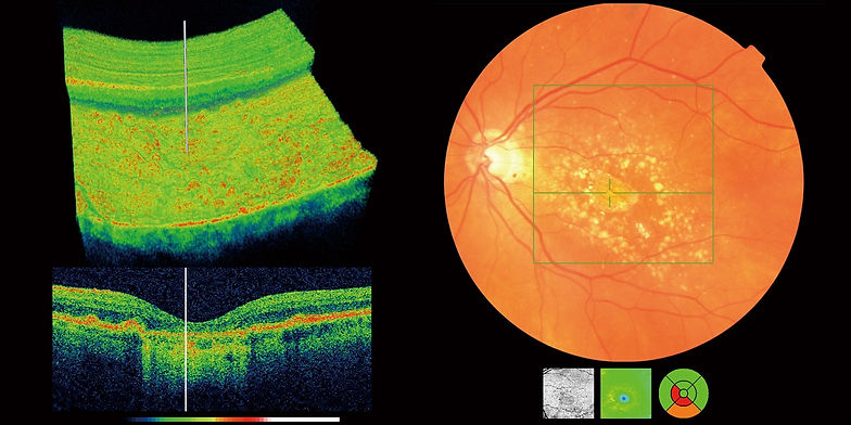 OCT scan showing macula