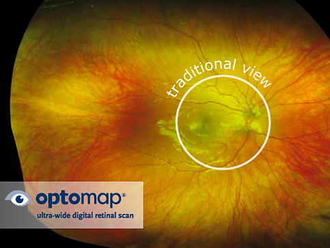 optomap-retinal-scan