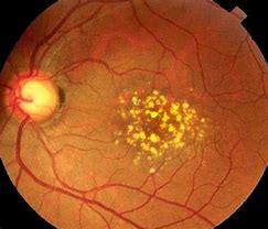Focus On: Macular Degeneration