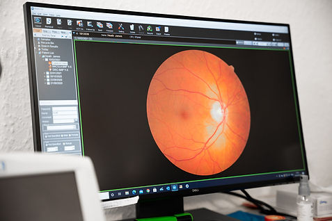 Image of OCT scan displayed on monitor screen